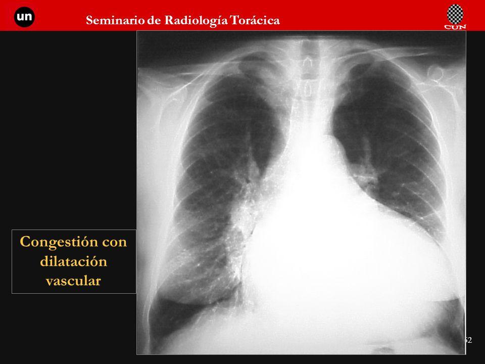 Congestión con dilatación vascular