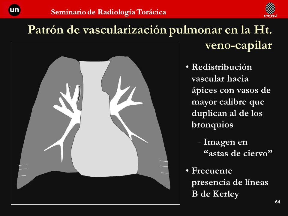 Patrón de vascularización pulmonar en la Ht. veno-capilar