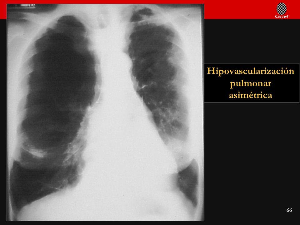 Hipovascularización pulmonar asimétrica