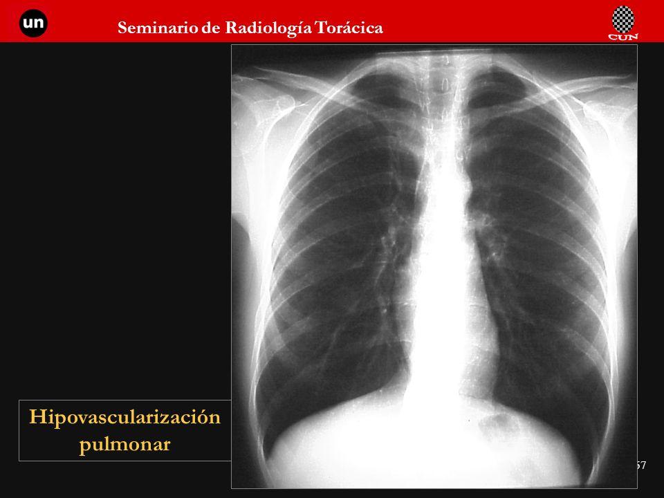Hipovascularización pulmonar