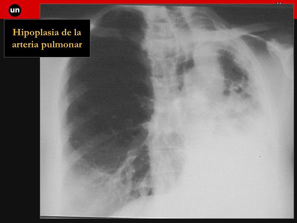 Hipoplasia de la arteria pulmonar