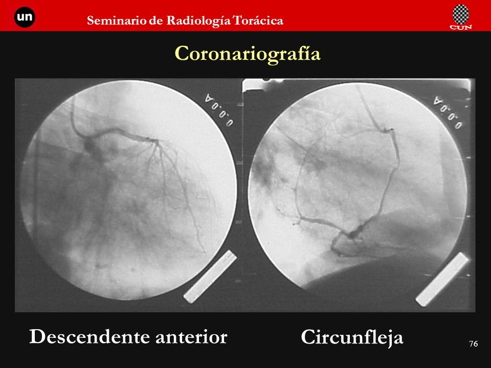 Coronariografía Descendente anterior Circunfleja