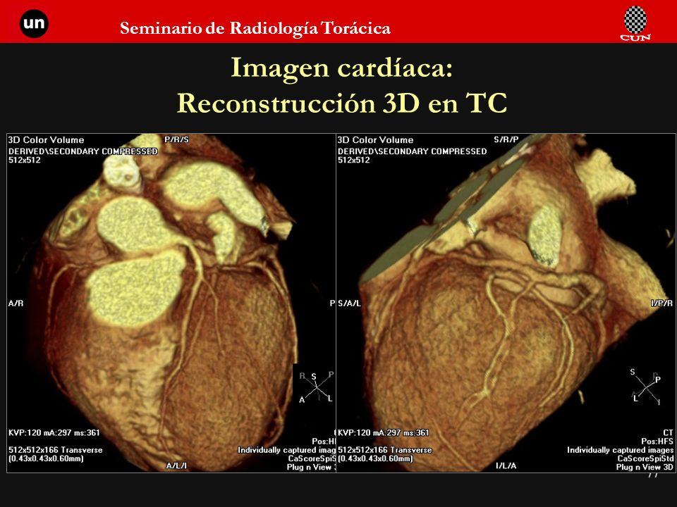 Imagen cardíaca: Reconstrucción 3D en TC