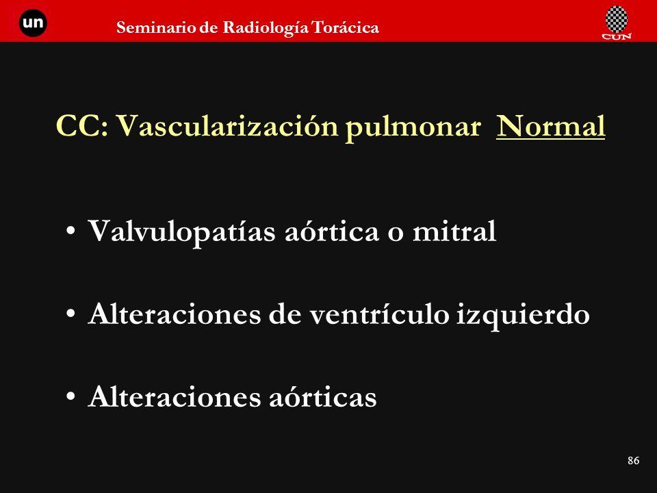 CC: Vascularización pulmonar Normal