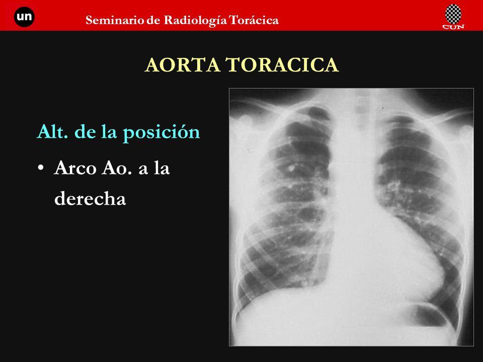 AORTA TORACICA Alt. de la posición Arco Ao. a la derecha