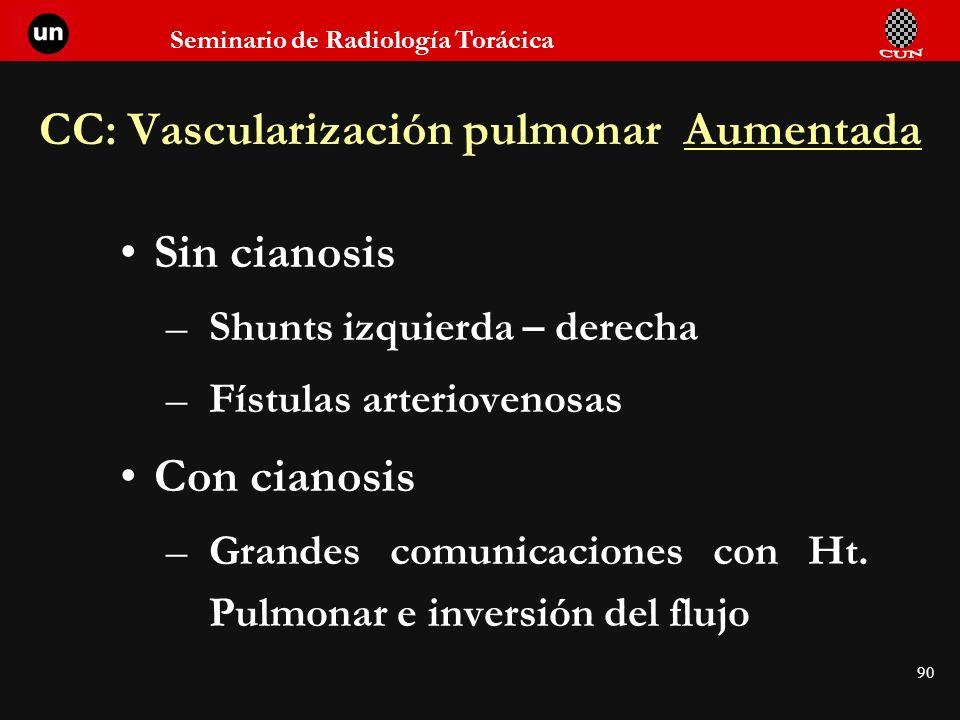 CC: Vascularización pulmonar Aumentada