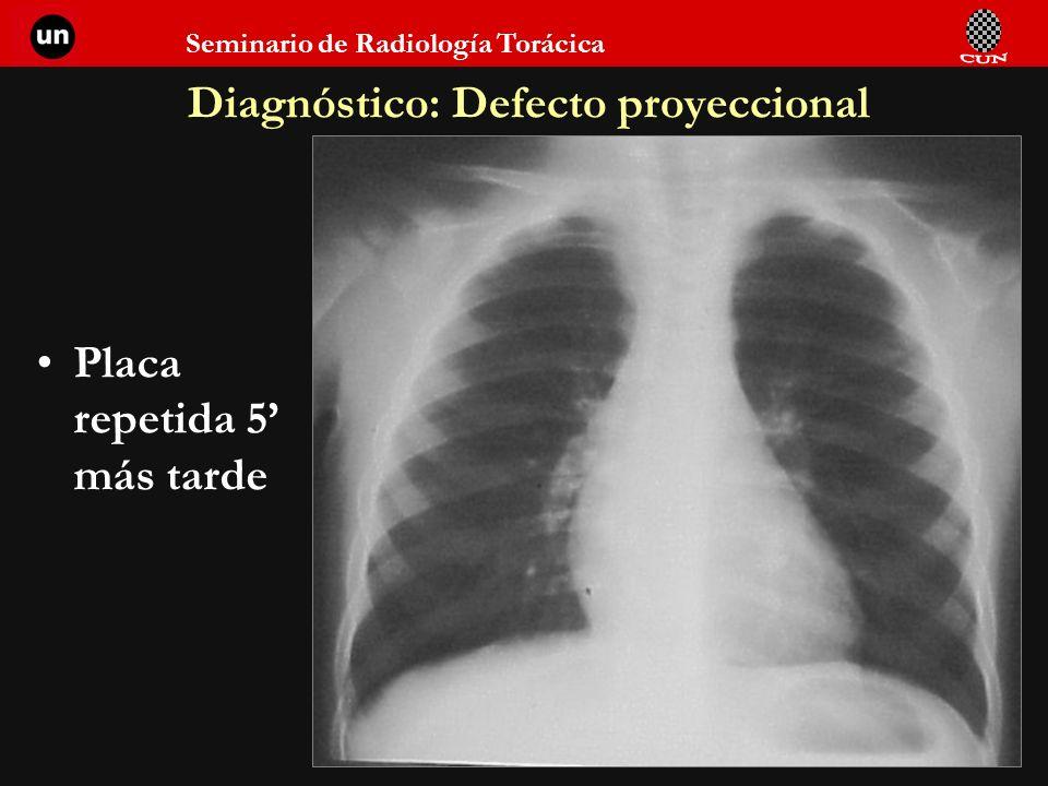 Diagnóstico: Defecto proyeccional