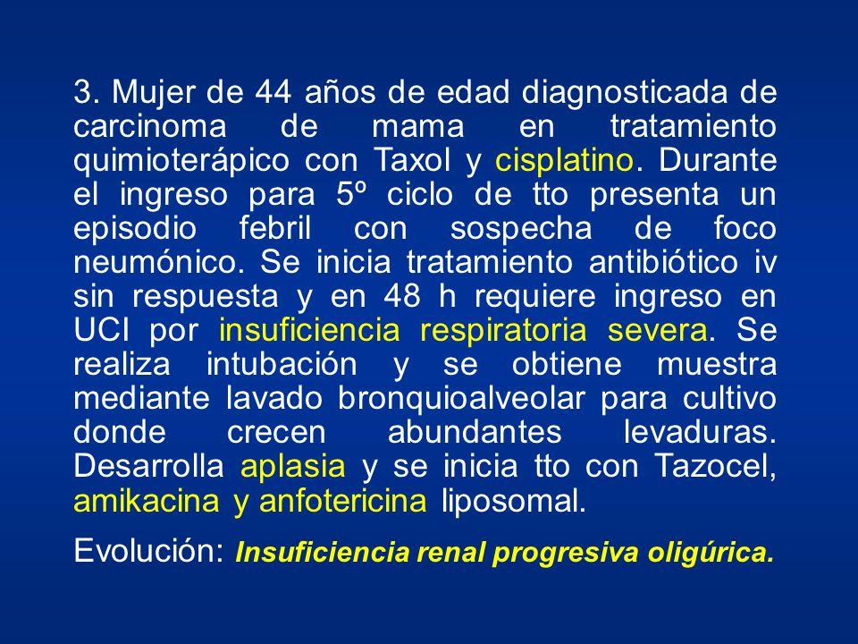 3. Mujer de 44 años de edad diagnosticada de carcinoma de mama en tratamiento quimioterápico con Taxol y cisplatino. Durante el ingreso para 5º ciclo de tto presenta un episodio febril con sospecha de foco neumónico. Se inicia tratamiento antibiótico iv sin respuesta y en 48 h requiere ingreso en UCI por insuficiencia respiratoria severa. Se realiza intubación y se obtiene muestra mediante lavado bronquioalveolar para cultivo donde crecen abundantes levaduras. Desarrolla aplasia y se inicia tto con Tazocel, amikacina y anfotericina liposomal.