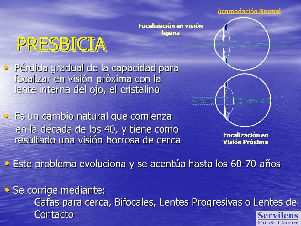 Focalización en visión lejana Focalización en Visión Próxima