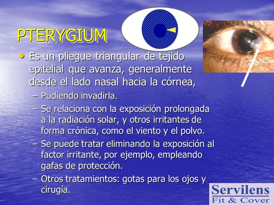 PTERYGIUM Es un pliegue triangular de tejido epitelial que avanza, generalmente desde el lado nasal hacia la córnea,