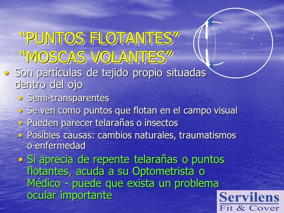 PUNTOS FLOTANTES MOSCAS VOLANTES