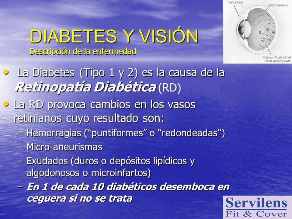 DIABETES Y VISIÓN Descripción de la enfermedad. La Diabetes (Tipo 1 y 2) es la causa de la Retinopatía Diabética (RD)