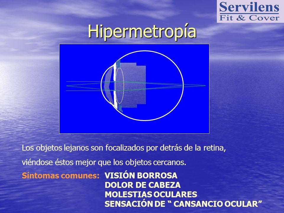 Hipermetropía Los objetos lejanos son focalizados por detrás de la retina, viéndose éstos mejor que los objetos cercanos.