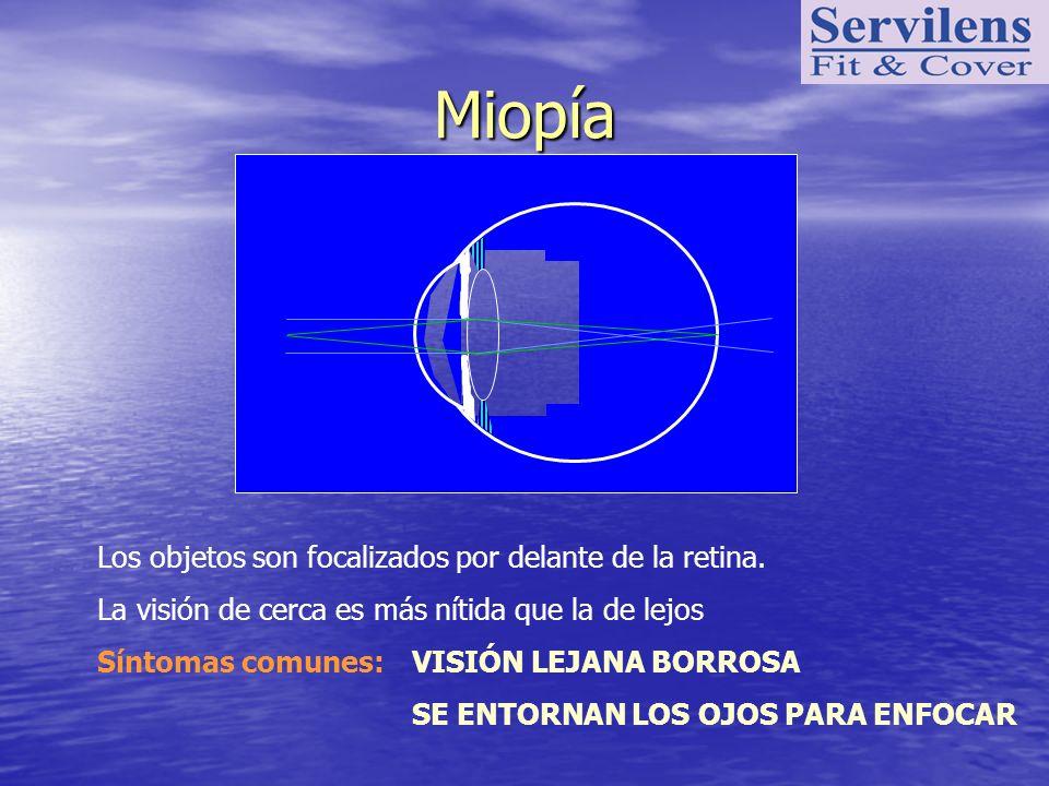 Miopía Los objetos son focalizados por delante de la retina.