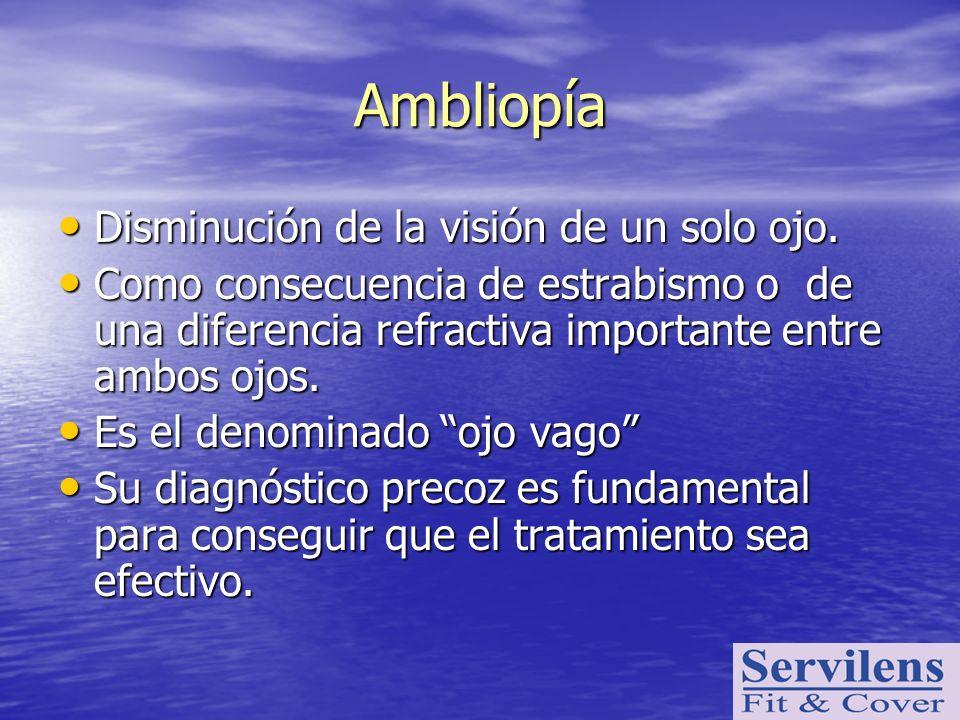 Ambliopía Disminución de la visión de un solo ojo.