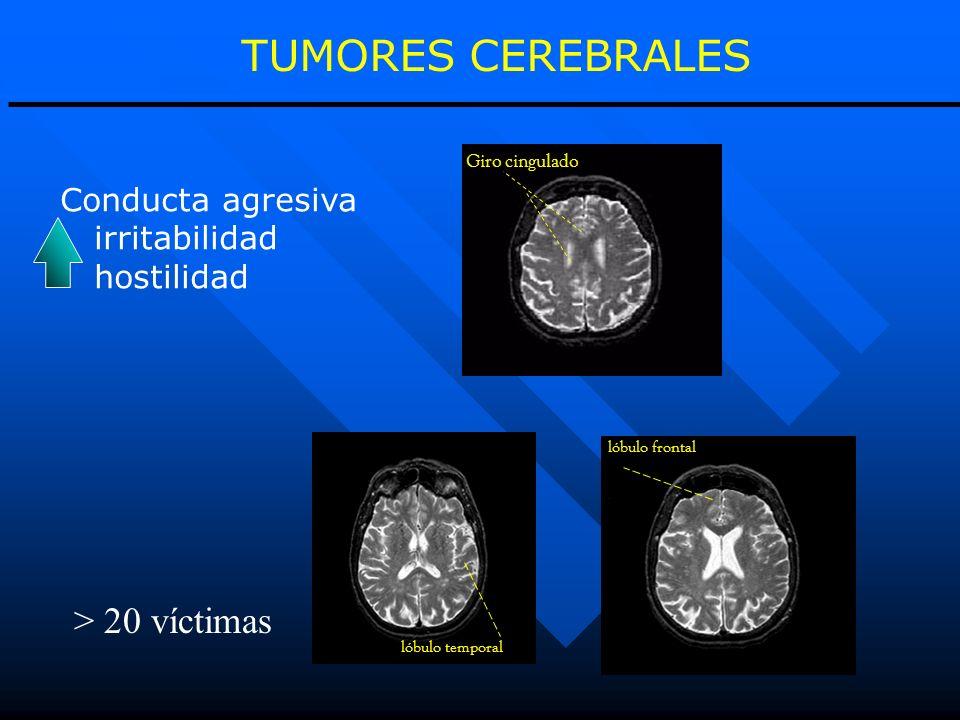 TUMORES CEREBRALES > 20 víctimas Conducta agresiva irritabilidad