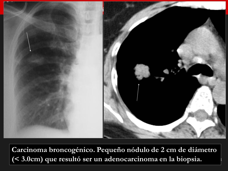 Carcinoma broncogénico. Pequeño nódulo de 2 cm de diámetro (< 3