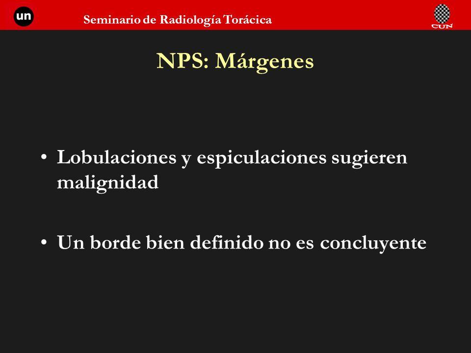 NPS: Márgenes Lobulaciones y espiculaciones sugieren malignidad