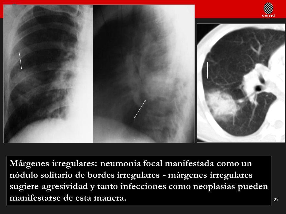 Márgenes irregulares: neumonia focal manifestada como un nódulo solitario de bordes irregulares - márgenes irregulares sugiere agresividad y tanto infecciones como neoplasias pueden manifestarse de esta manera.