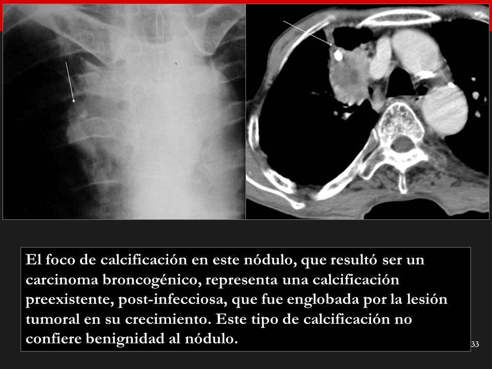 El foco de calcificación en este nódulo, que resultó ser un carcinoma broncogénico, representa una calcificación preexistente, post-infecciosa, que fue englobada por la lesión tumoral en su crecimiento.