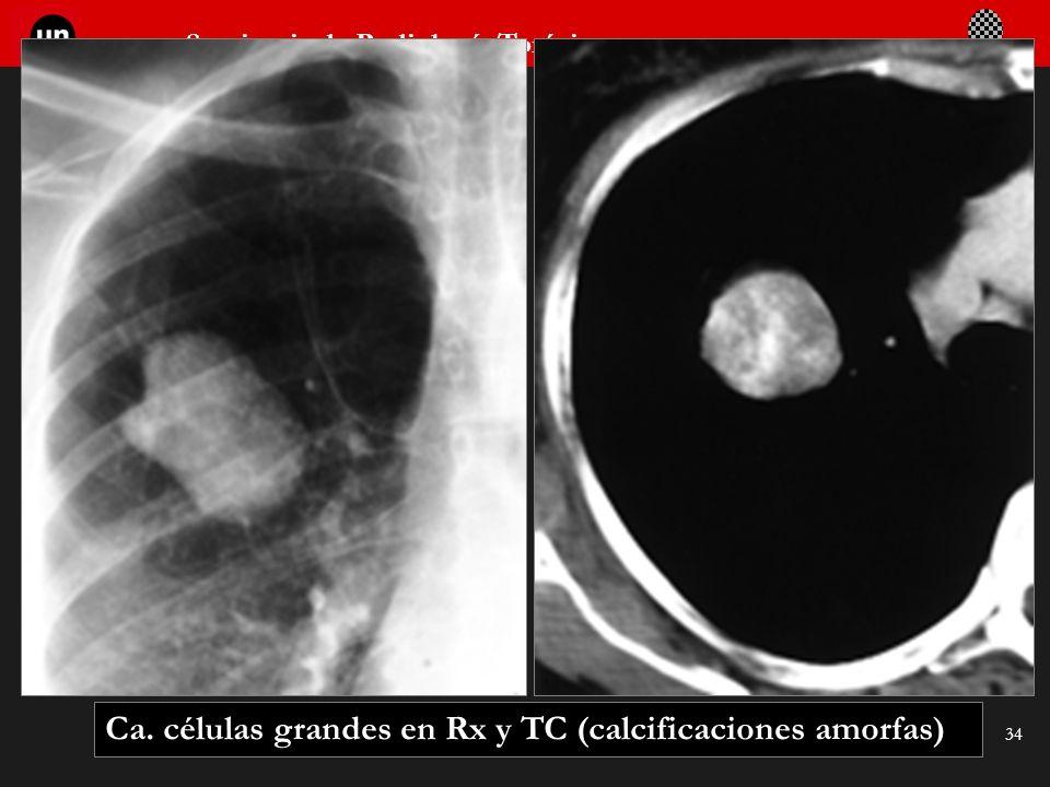 Ca. células grandes en Rx y TC (calcificaciones amorfas)