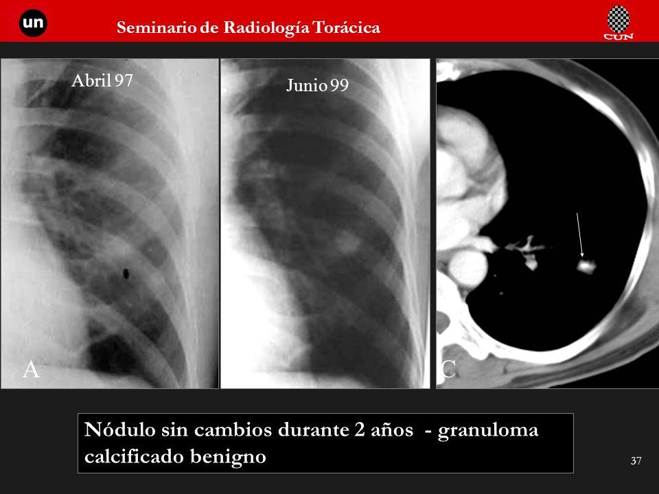 Abril 97 Junio 99 A B C Nódulo sin cambios durante 2 años - granuloma calcificado benigno