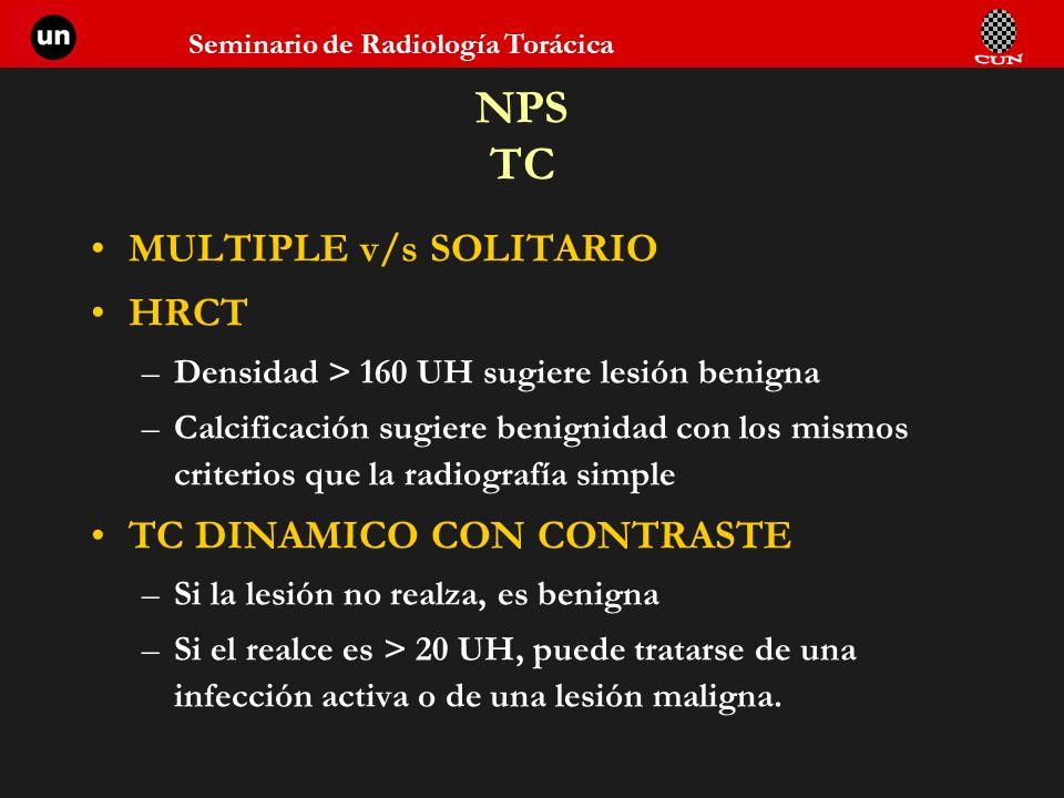 NPS TC MULTIPLE v/s SOLITARIO HRCT TC DINAMICO CON CONTRASTE