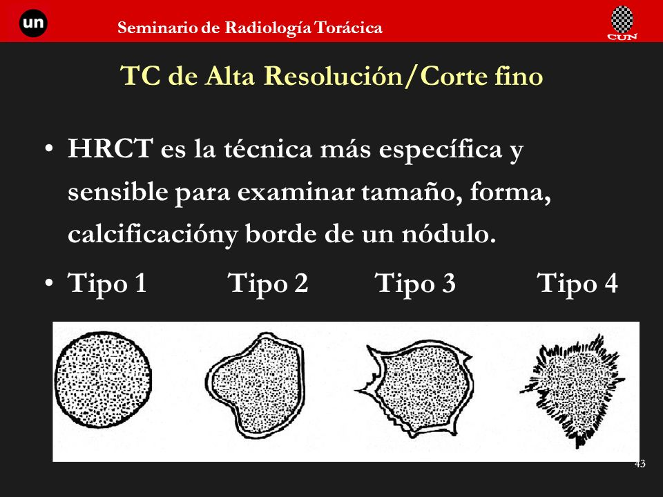 TC de Alta Resolución/Corte fino