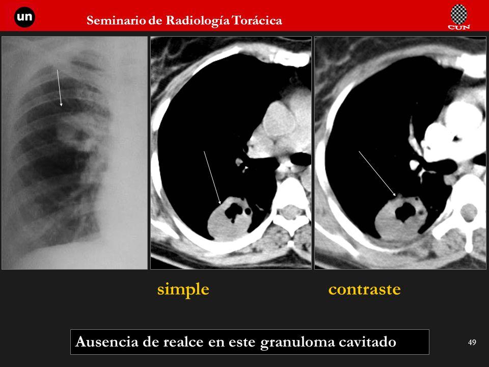 simple contraste Ausencia de realce en este granuloma cavitado