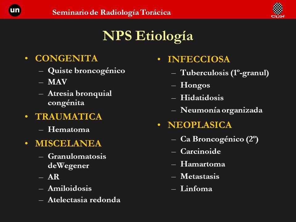 NPS Etiología CONGENITA TRAUMATICA MISCELANEA INFECCIOSA NEOPLASICA