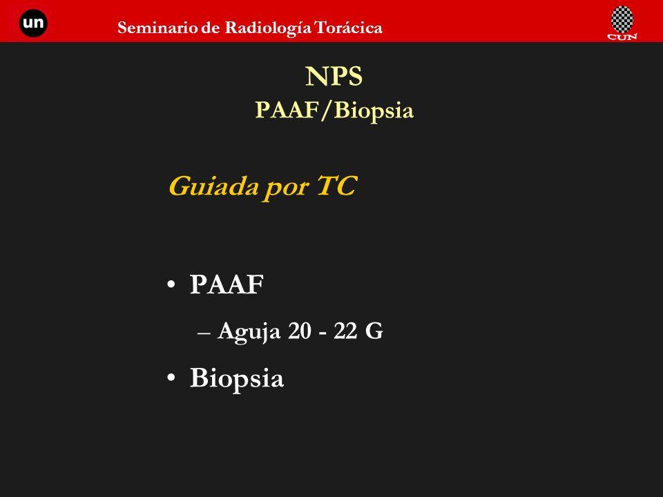 NPS PAAF/Biopsia Guiada por TC PAAF Aguja 20 - 22 G Biopsia