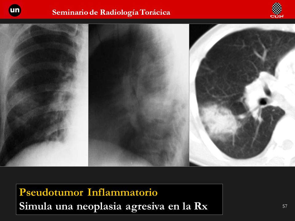 Pseudotumor Inflammatorio
