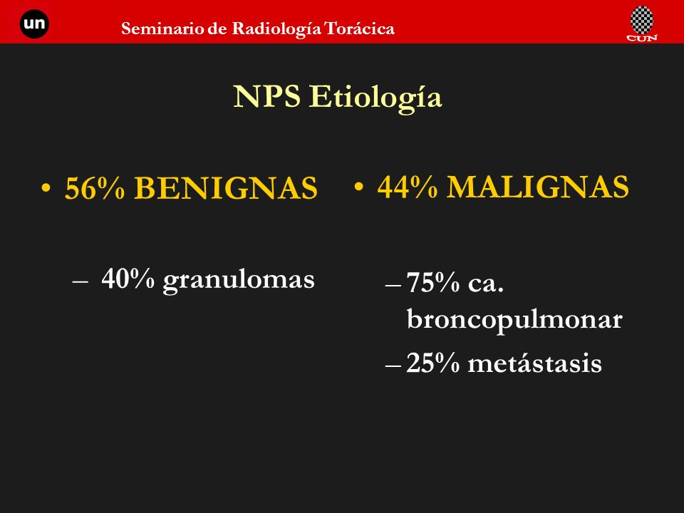 NPS Etiología 56% BENIGNAS 44% MALIGNAS 40% granulomas