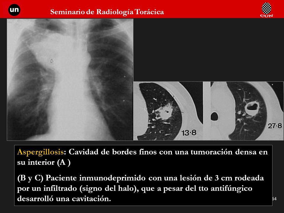 Aspergillosis: Cavidad de bordes finos con una tumoración densa en su interior (A )