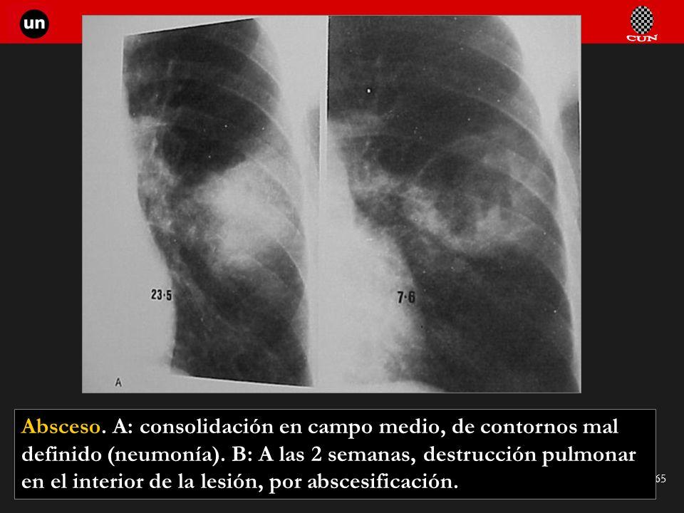 Absceso. A: consolidación en campo medio, de contornos mal definido (neumonía).