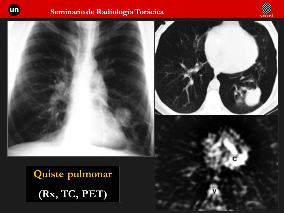 Quiste pulmonar (Rx, TC, PET)