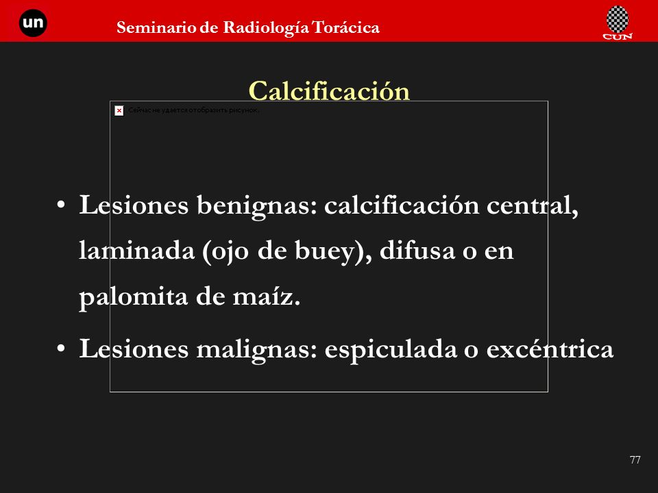 Calcificación Lesiones benignas: calcificación central, laminada (ojo de buey), difusa o en palomita de maíz.
