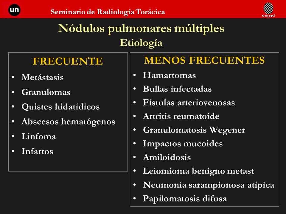 Nódulos pulmonares múltiples Etiología