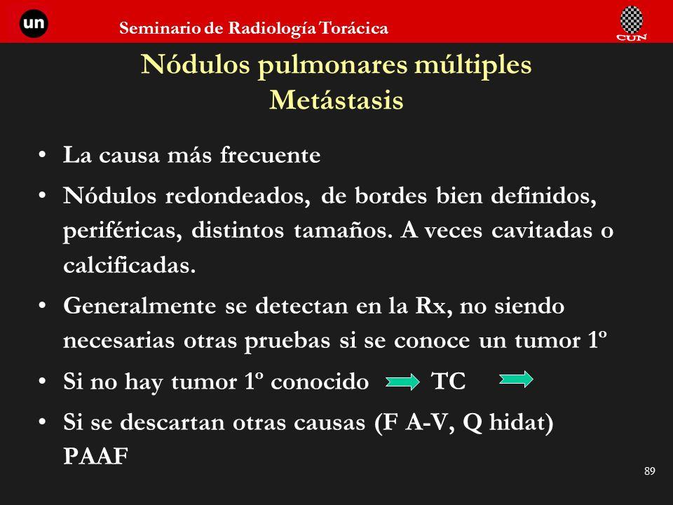 Nódulos pulmonares múltiples Metástasis