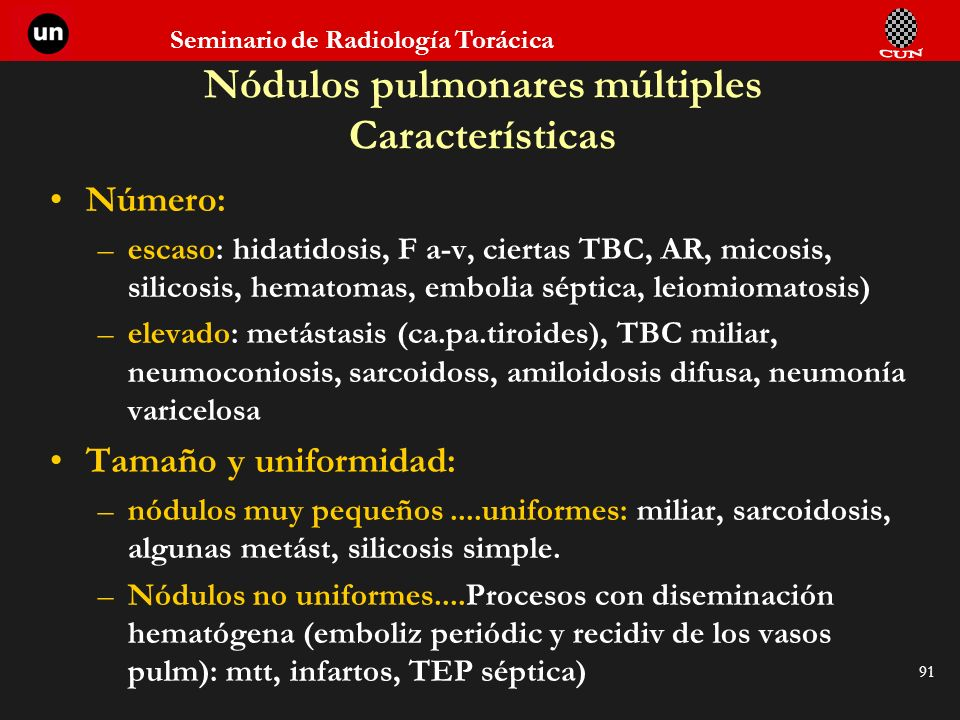 Nódulos pulmonares múltiples Características