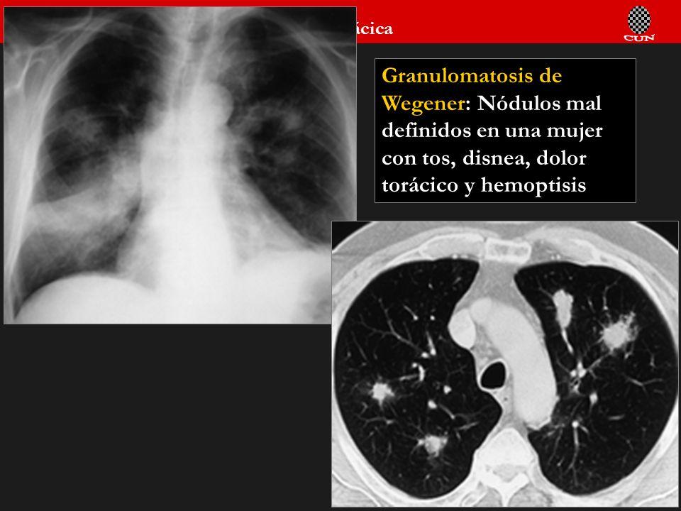 Granulomatosis de Wegener: Nódulos mal definidos en una mujer con tos, disnea, dolor torácico y hemoptisis