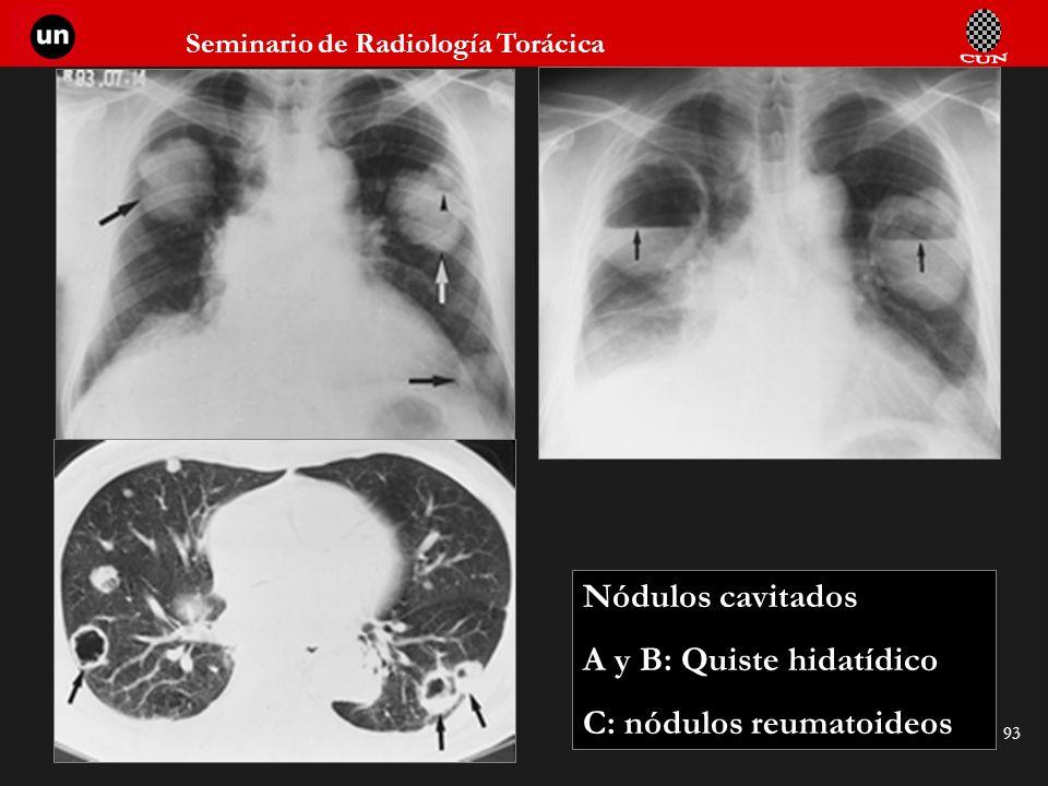 Nódulos cavitados A y B: Quiste hidatídico C: nódulos reumatoideos