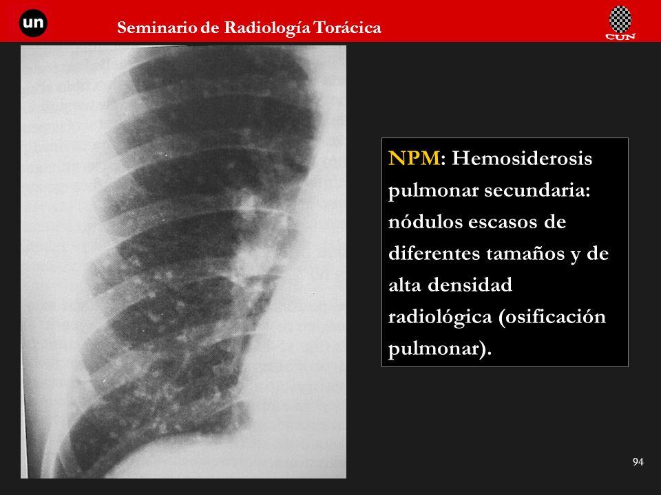NPM: Hemosiderosis pulmonar secundaria: nódulos escasos de diferentes tamaños y de alta densidad radiológica (osificación pulmonar).