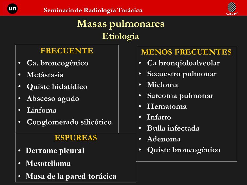 Masas pulmonares Etiología