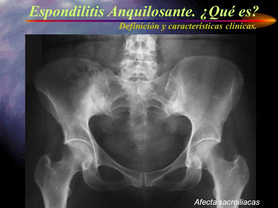 Espondilitis Anquilosante. ¿Qué es