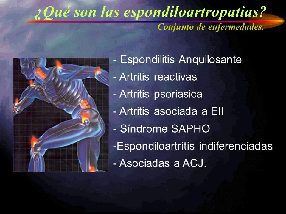 ¿Qué son las espondiloartropatias