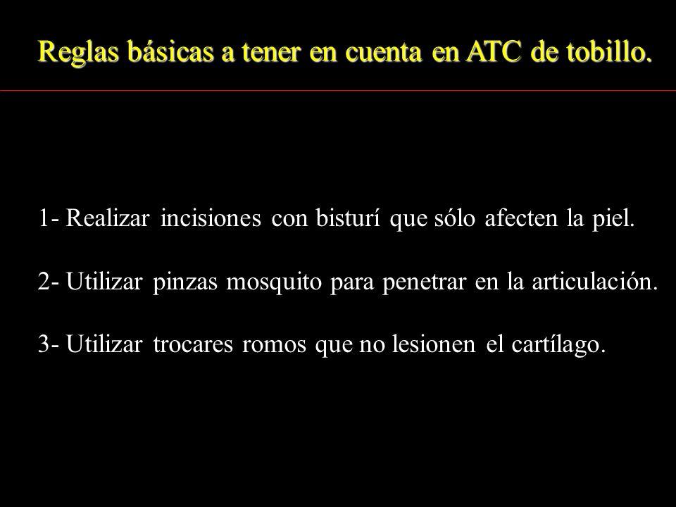 Reglas básicas a tener en cuenta en ATC de tobillo.