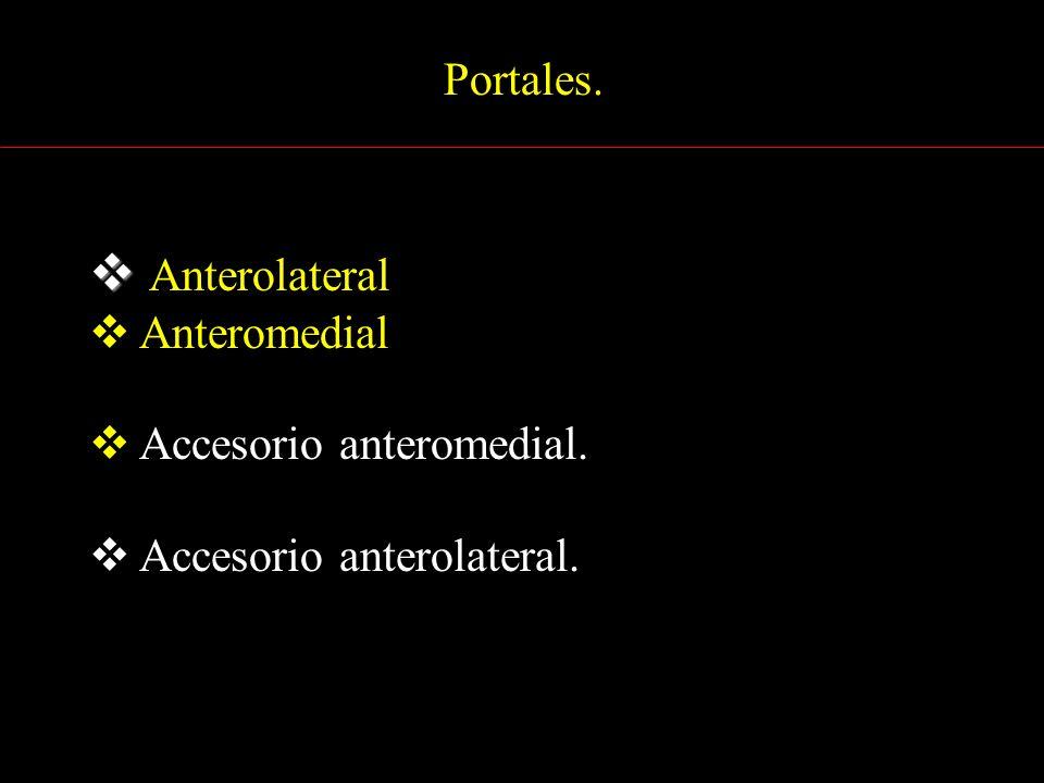 Anterolateral Portales. Anteromedial Accesorio anteromedial.