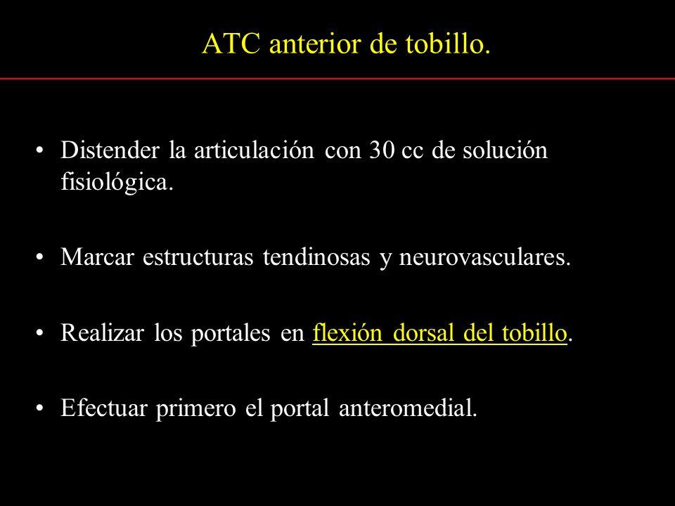ATC anterior de tobillo.