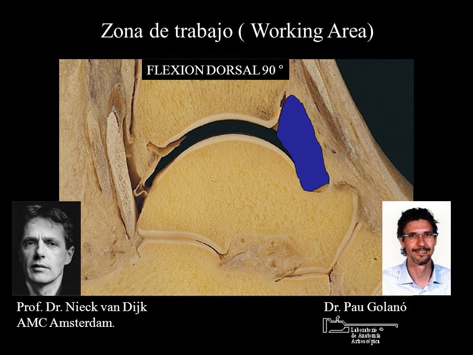 Zona de trabajo ( Working Area)